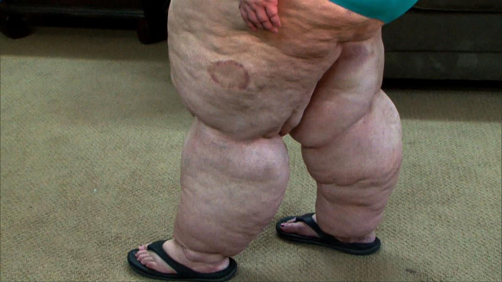 Fat Leg Women 102