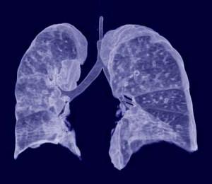 Todo sobre cáncer de pulmón