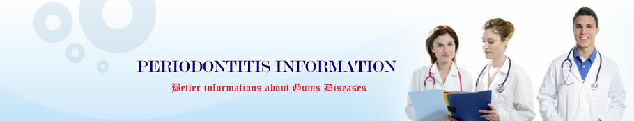 Periodontitis Information