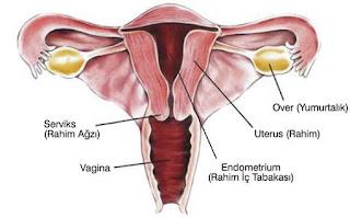 Obat Kanker rahim atau kanker serviks stadium 3