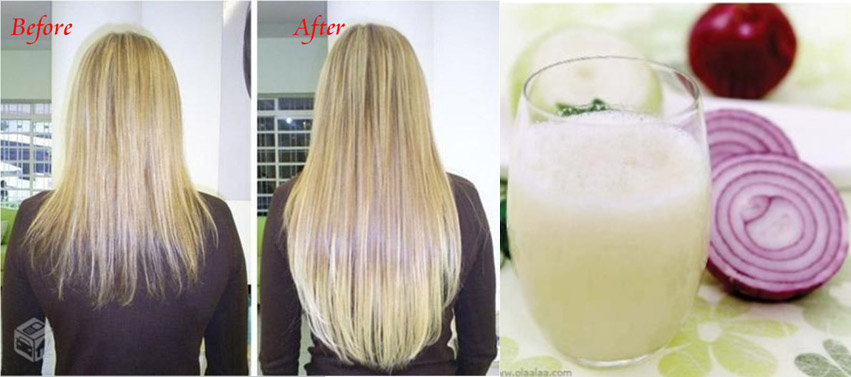 How To Make Onion Juice For Hair Growth Entertainment