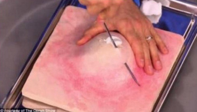 Doktor kongsi teknik yang betul untuk pecahkan jerawat