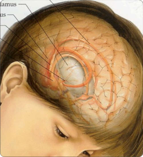 Brain cancer in children