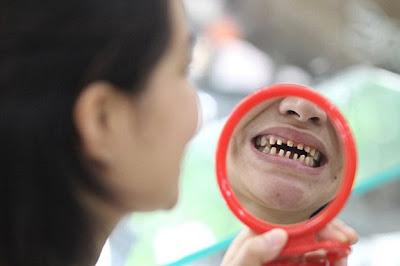 Mulher processa dentista que a deixou tão feia que assusta seu bebê