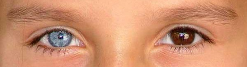 Laugh Gags: Heterochromia in humans. Different color eyes