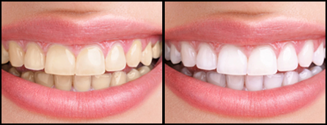 -dental-bleaching.html