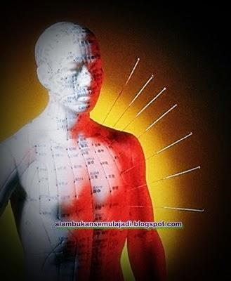 Akupuntur Kaedah Alternatif Perubatan