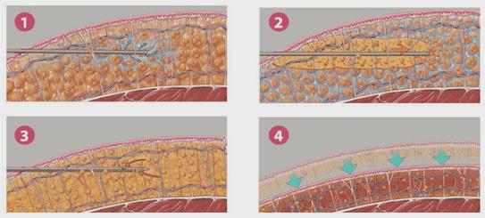 شفط الدهون شفط الدهون بالليزر ومخاطرها Laser Liposuction