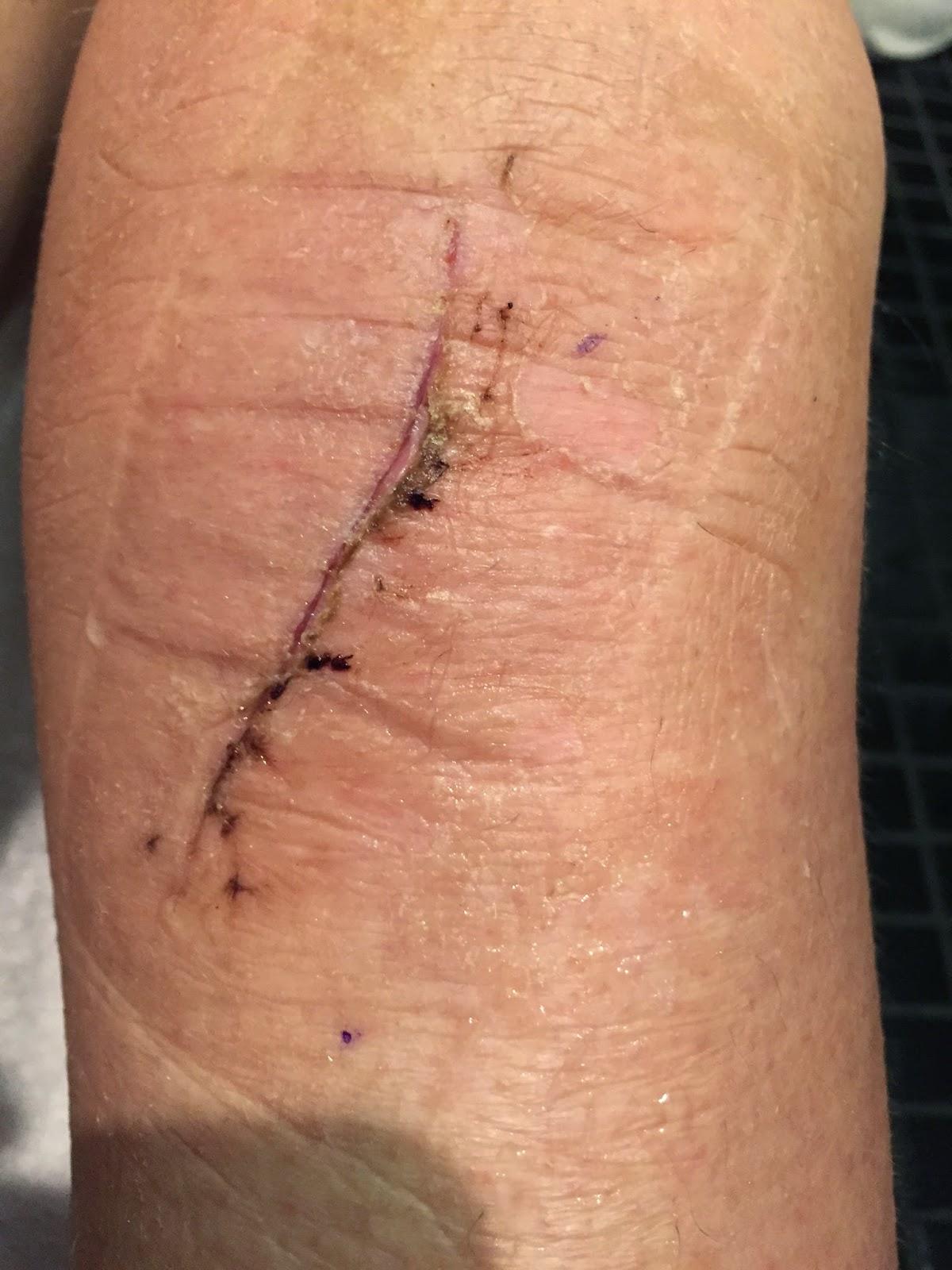 betændelse i sår efter operation