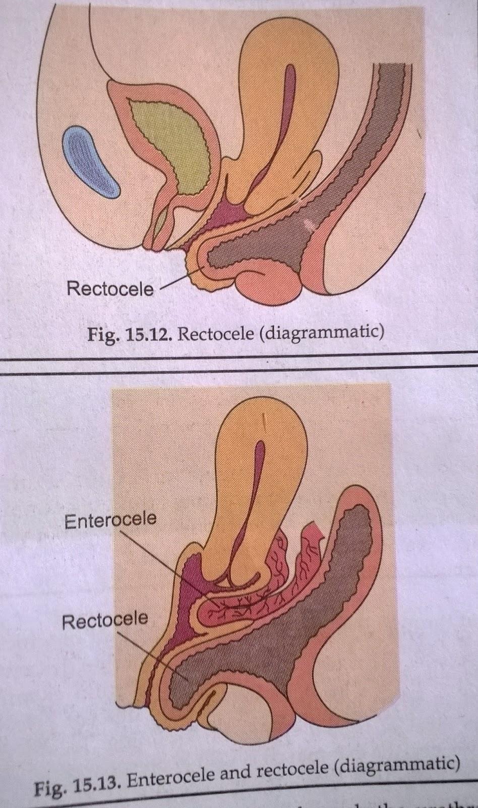 fri fanden uterin prolaps smerter
