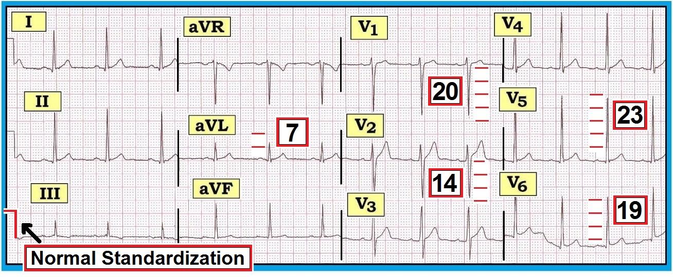 ECG Interpretation ECG Interpretation Review 73 LVH Hypertrophy
