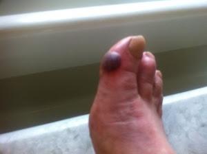 The foot of an ultramarathoner!