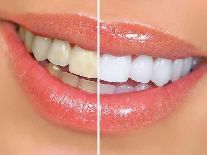 Cara Cepat Memutihkan Gigi Secara Alami Dengan Mudah