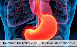 Признаки гастрита с пониженной кислотностью
