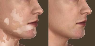 obat vitiligo | penyakit vitiligo adalah