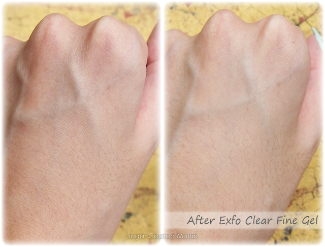 Results from Exfo Clear Fine Gel