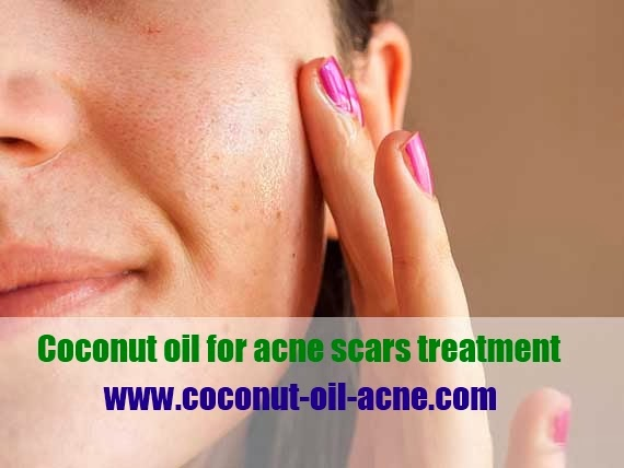 Coconut oil for acne scars treatment,Coconut oil acne