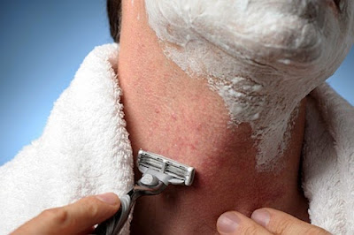 How to get rid of Razor Burn Fast