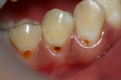 أسباب وعلاج تآكل الأسنان