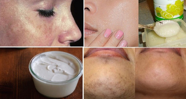 Treat Your Black Spots with Awesome Home Remedies