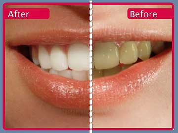 Teen Tips How To Whiten Your Teeth Using Home Remedies