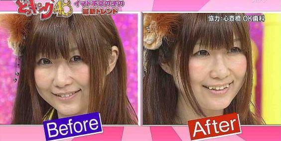 Japon kızı, önce ve sonra