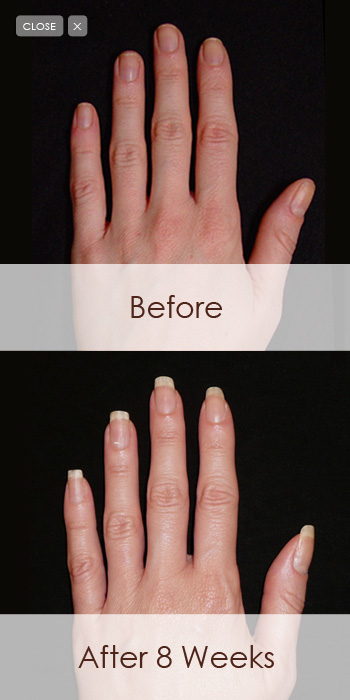 Gel for Nails - Nail Picture Art