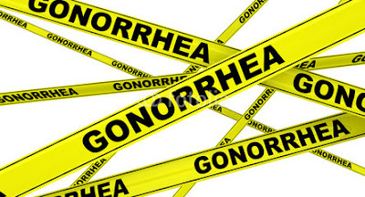 Obat Infeksi Gonorrhea Cara Mengatasi Kencing Nanah
