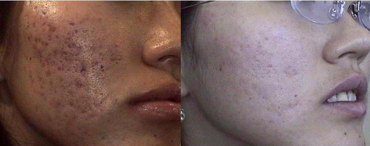 La mancha de pigmento sobre la frente la desaparición por el láser