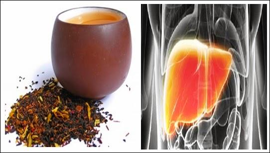Cara Membuat Ramuan Tradisional Pembersih Liver