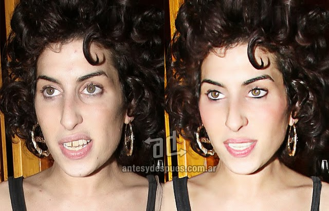 did amy winehouse have plastic surgery before and after