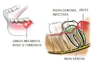 Remediu naturist contra abcesului dentar