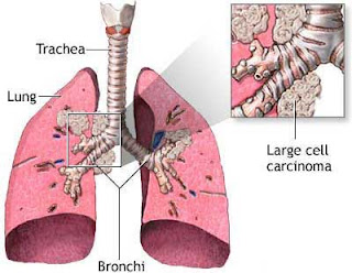 Lung cancer definition, Lung cancer prognosis, symptoms lung cancer, cancer symptoms, symptoms of cancer, small cell cancer, lung cancer smoking, lung cancer treatment, lung cancer survival, lung cancer pain