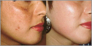 comment traiter les cicatrices d'acné naturellement