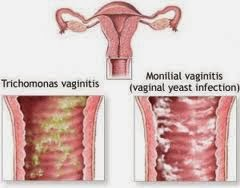 Obat Untuk Penyakit Vaginitis