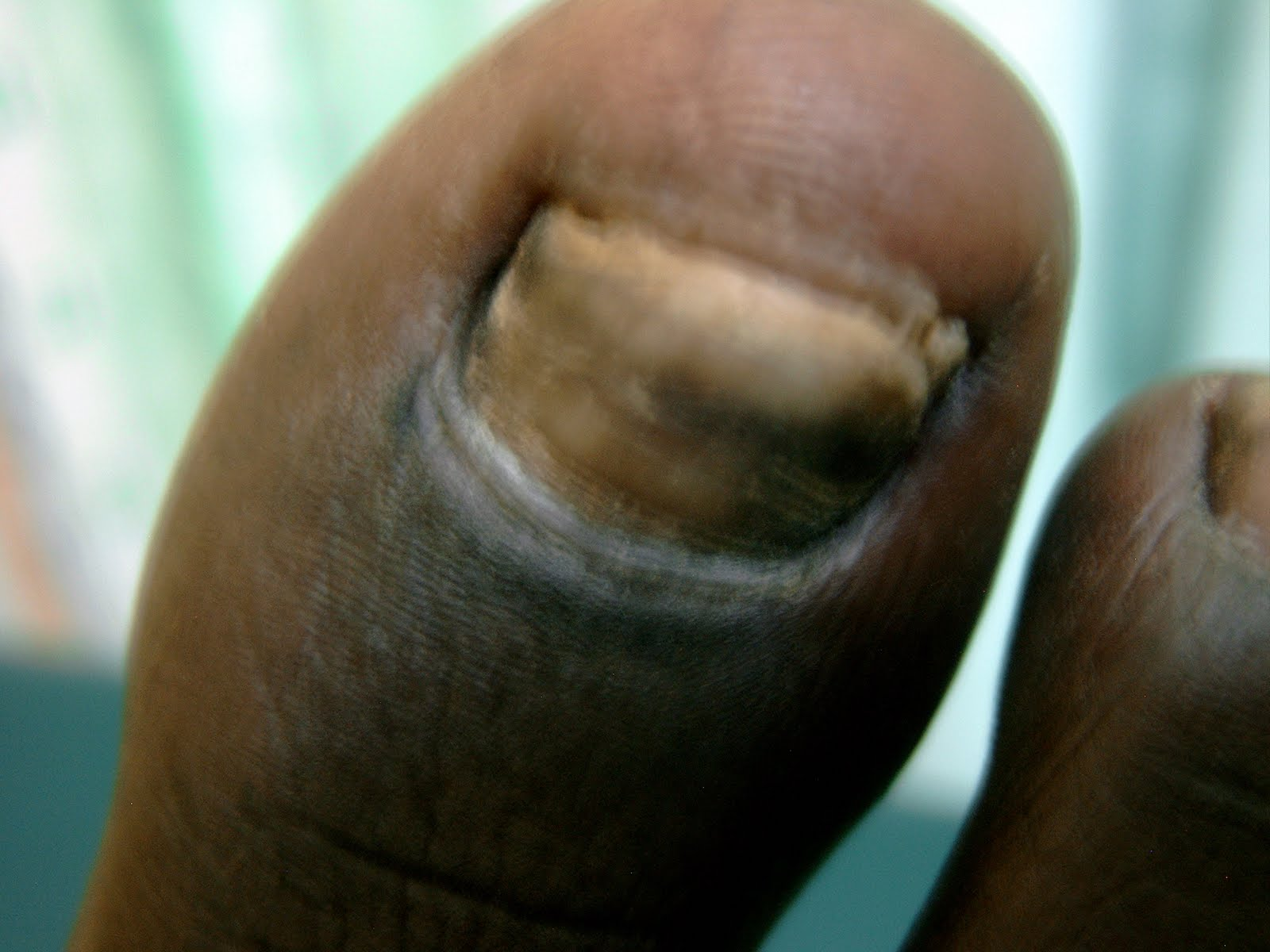 how to clean a nail fungus infection
