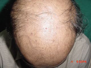 hair loss stages of follicles before hair transplant by best plastic surgeon kolkata top cosmetic surgeon india