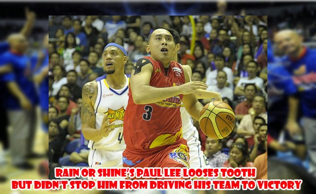 Rain or Shine's Paul Lee Looses Tooth but didn't Stop him from Driving his Team to Victory