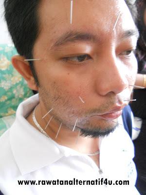 Merawat masalah bell's palsy dengan akupunktur