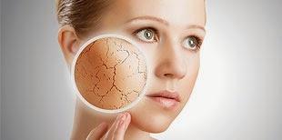 Dry skin causes