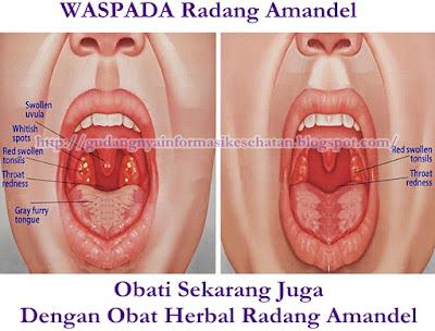 Obat Herbal Radang Amandel