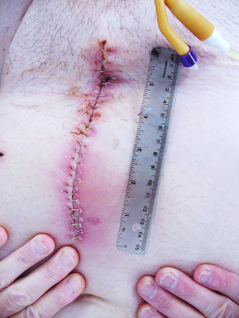 Photo six inch prostatectomy incision 2012