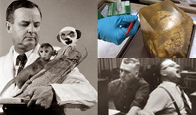 5 Eksperimen Otak yang paling Terkejam di Dunia