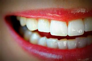 Neteja dental professional a Reus i Tarragona