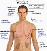 Faktor Resiko Diabetes Melitus (DM), Blog Keperawatan