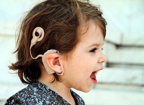 Cochlear Implant - alat bantu mendengar bagi orang tuli