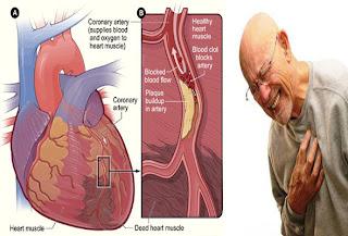 Faktor-faktor Resiko Penyebab Penyakit Jantung Koroner