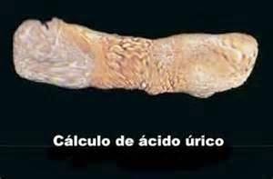 cual es el acido urico el acido urico provoca fiebre medicamento natural acido urico