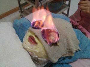 Facial Api, Cara Tampil Cantik Dengan Membakar Wajah