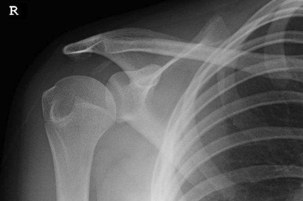 Gambar x-ray tulang bahu Lauren Harry yang sering terseliuh itu.